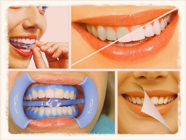 Отбеливание зубов в домашних условиях без вреда для эмали рецепт 164