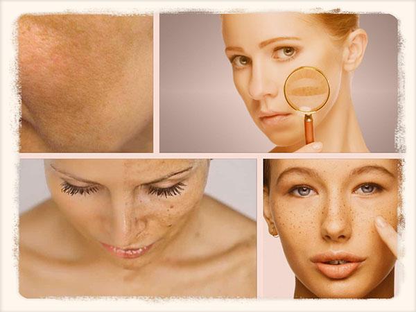 Как избавиться от пигментных пятен на лице