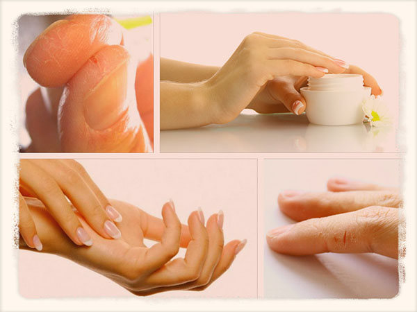 Трескается кожа на пальцах рук что делать