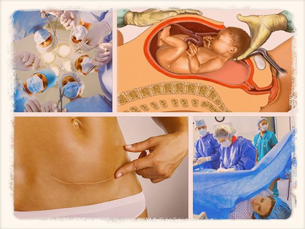 сколько длится операция кесарево сечение по времени