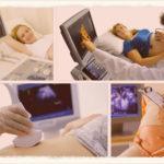 Как и когда делают второй скрининг при беременности